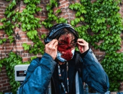 Journo Ed Ou bleeds profusely from head injury caused by a Minneapolis police rubber bullet.