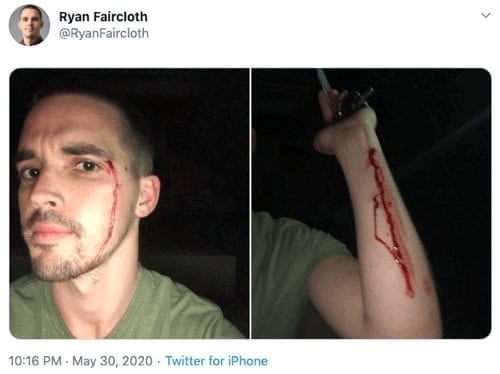 MN journalist Ryan Faircloth shows injuries from MN police.