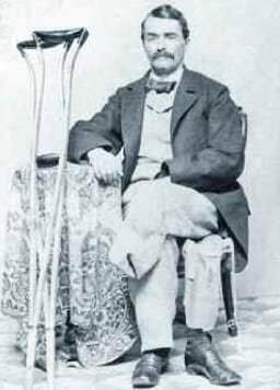 Union soldier Marshall Sherman, who lost his leg in 1864